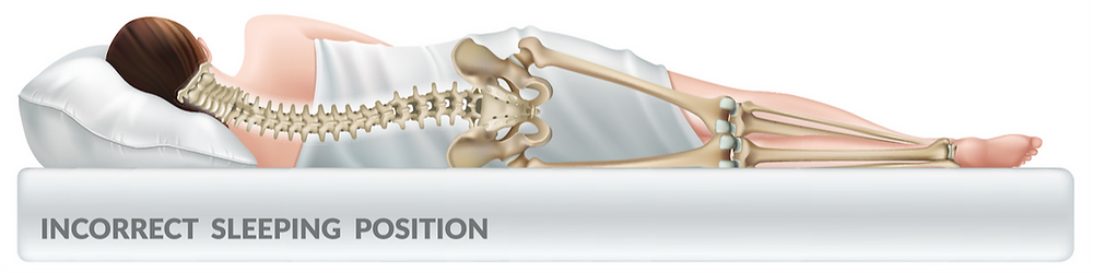 bad back, back pain, poor sleep, lower back pain, sciatica, adjustable beds, australia, brisbane, sydney, melbourne, sleep quality, deep sleep, REM sleep, luxury, comfort, superior lifestyle