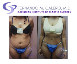 plastic surgery pr