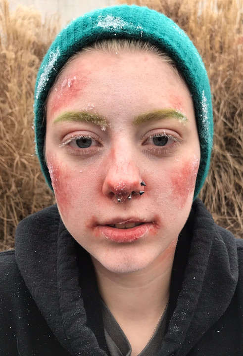 Frostbite Makeup