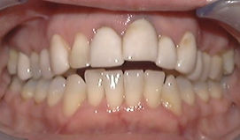 Advanced Orthodontic Techniques Picture