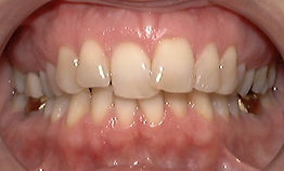 Adult Treatment, Orthodontic Picture