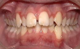 Severe Overbite, Orthpodontic Picture