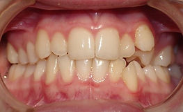 Crossbite, Orthodontic Picture