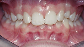Impacted Teeth, Orthodontic Picture