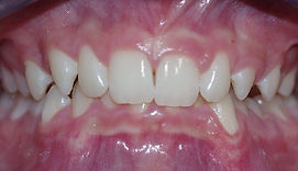 Deep Anterior Bite, Orthodontic Picture