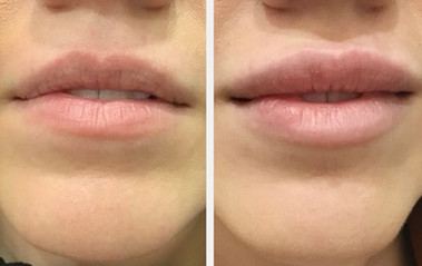 Lip enhancement with Vobella