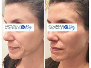 Tear troughs treated with Vobella   Cheeks & chin enhanced with Voluma