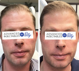 Forehead lines treated with Botox
