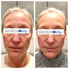 Forehead & frown lines treated with Botox