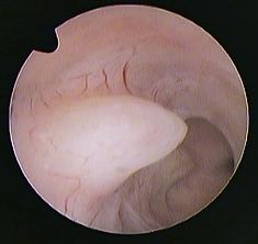 polype utérin