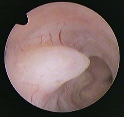 polype utérin latéral droit