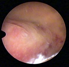 polype séssile utérus