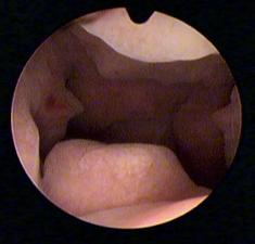 hypertrophie endomètre