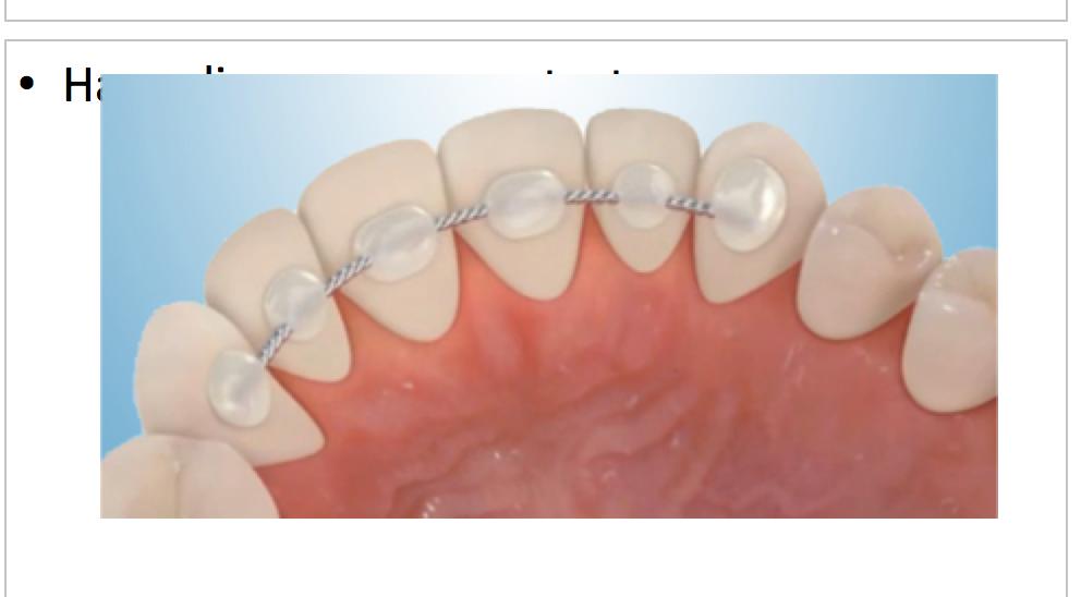Fix Orthodontic Retainer (per arch)