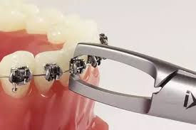 Debonding braces removal