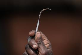 FEMALE GENITAL MUTILATION: THE CURSE FOR BEING A FEMALE