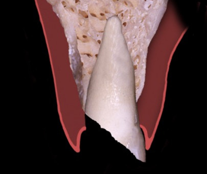 Webinar - Interdisciplinary Management of a Fractured Tooth