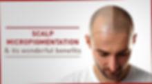 Scalp-micropigmentation-and-its-wonderfu