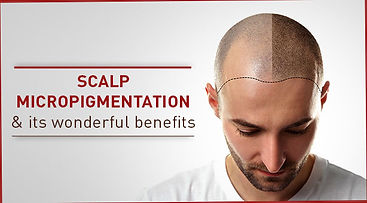 Scalp-micropigmentation-and-its-wonderfu