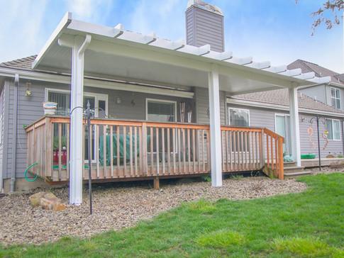 Alumawood Porch Cover