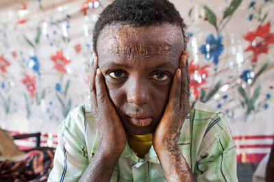 Dia Mundial contra les Mines, Darfur, Sudan