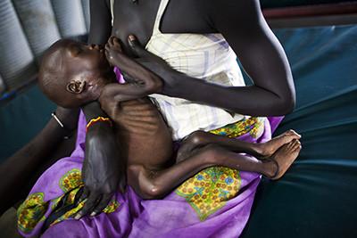 Elisa Jon dóna el pit al seu fill Jal Fou (1 any) que pateix severa malnutrició a la clínica del campament de desplaçats de Juba, Sudan del Sud. Foto de l'Albert González Farran – UNICEF