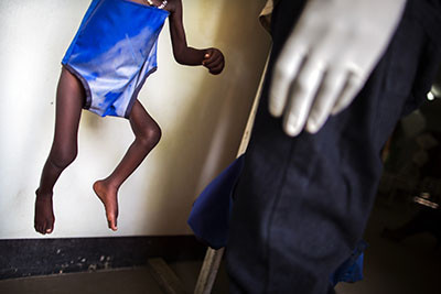 Un infermer pesa un nen amb greu desnutrició a l'hospital Al Sabbah de Juba, al Sudan del Sud. Foto de l'Albert González Farran – UNICEF