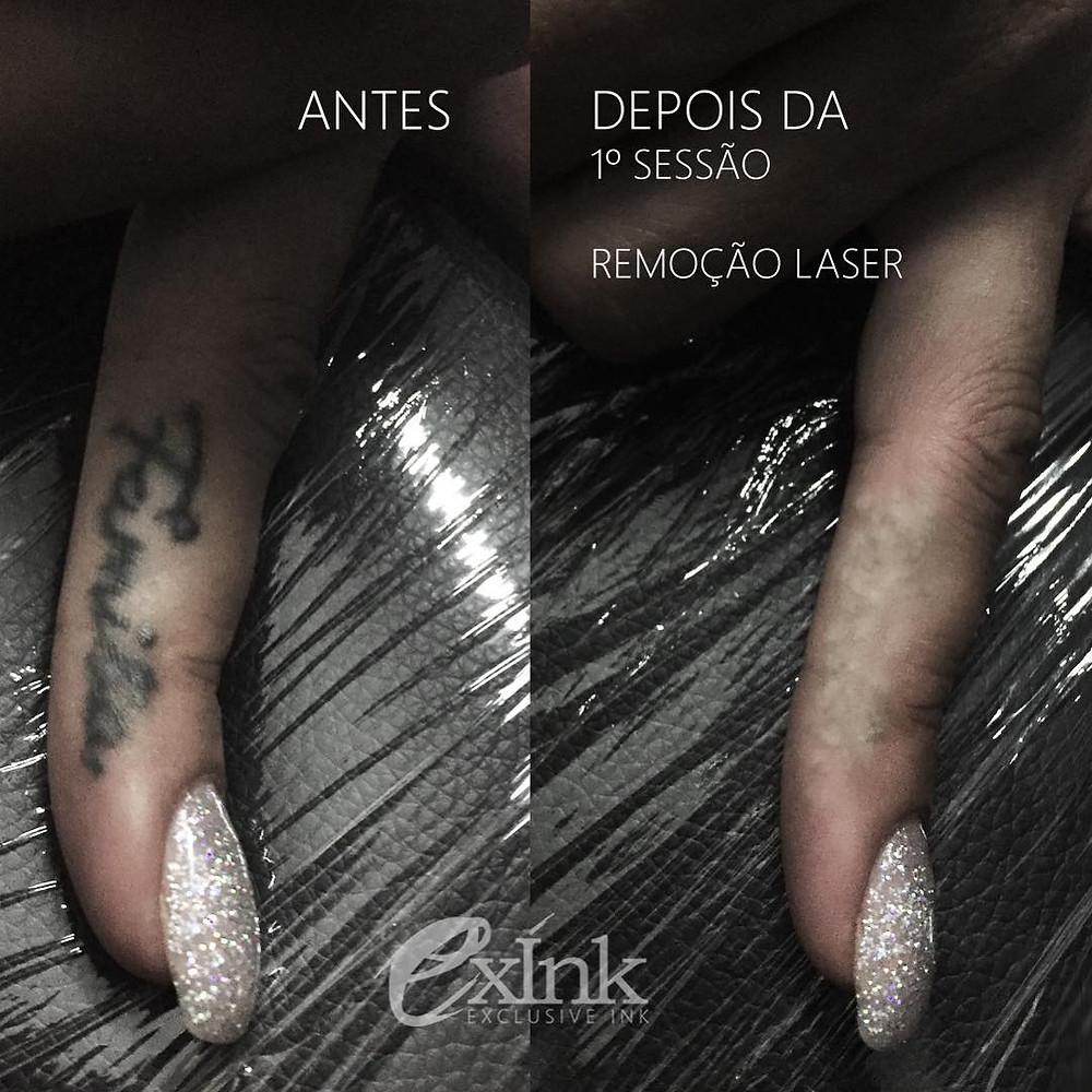 despigmentação de tatuagem