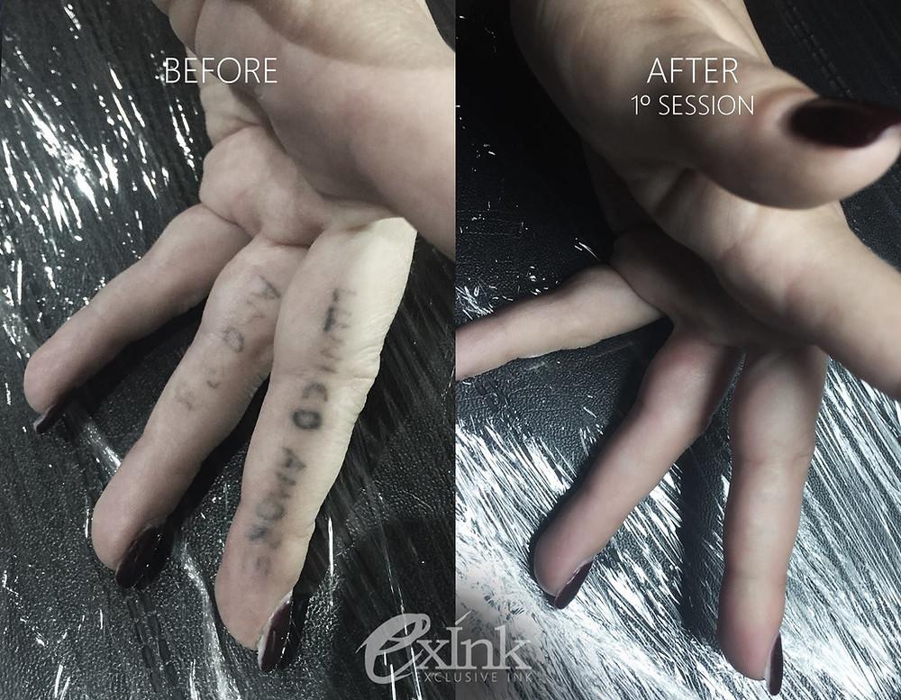 Remoção Laser de Tatuagem Antes e Depois