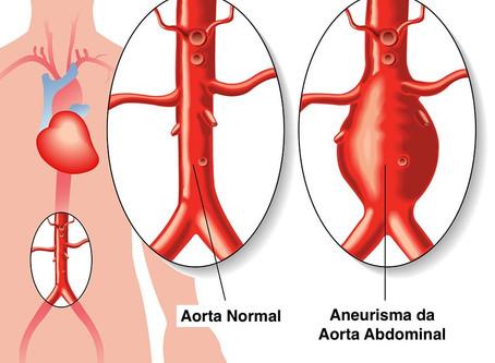 O que é um aneurisma da aorta abdominal?