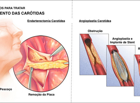 Doença Carotídea