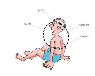 Sintomi della ISC