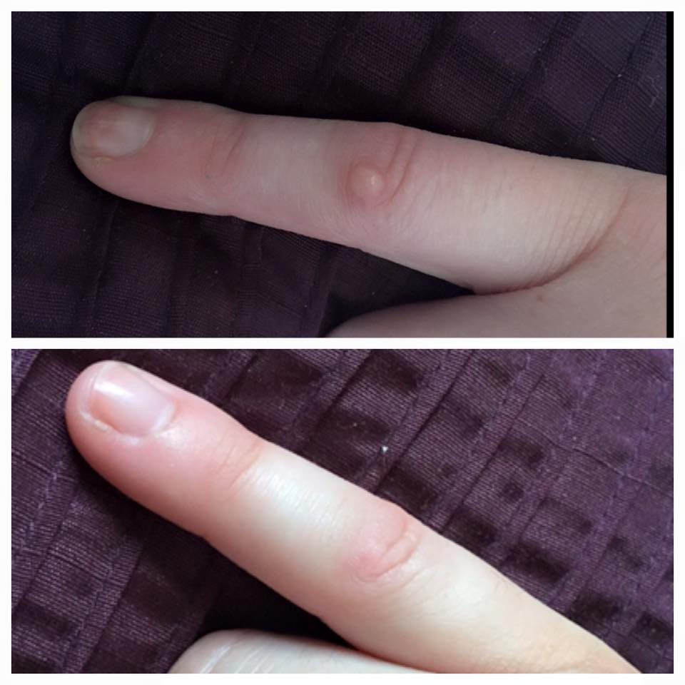 WART BEFORE AND AFTER (2).jpg
