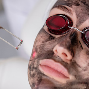 CARBON LASER FACIAL TREATMENTS CONTRAINDICATIONS & AFTERCARE