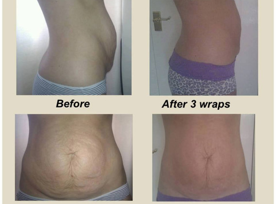 Post Natal Before & After
