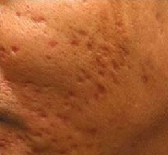 Dermapen Acne Scars Before.jpg