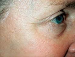 Dermapen Lines Eyes After.jpg
