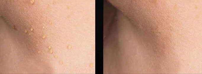 SKIN TAGS BEFORE AND AFTER.jpg