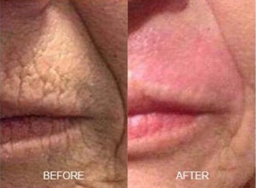 Plasma Lift Upper Lip