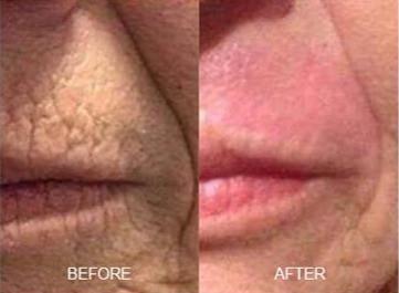 Plasma Lift Upper Lip