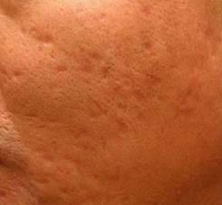 Dermapen Acne Scars After.jpg