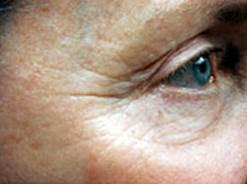 Dermapen Lines Eyes Before.jpg