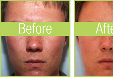 celluma-before-after-guy.jpg
