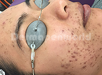 Acne Scarring - Before.png