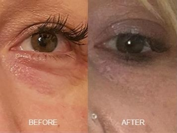 Plasma Lift Under Eyes