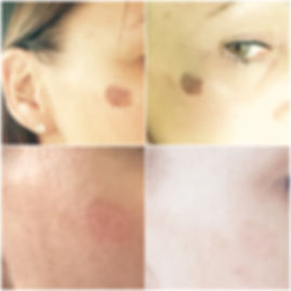 PIGMENTATION 4 BEFORE AND AFTER  (4).jpg