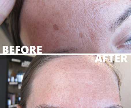 BEFORE AND AFTER (3).jpg
