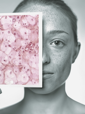 FREE information guide on The Facts, Prevention and Early Detection of Skin Cancer