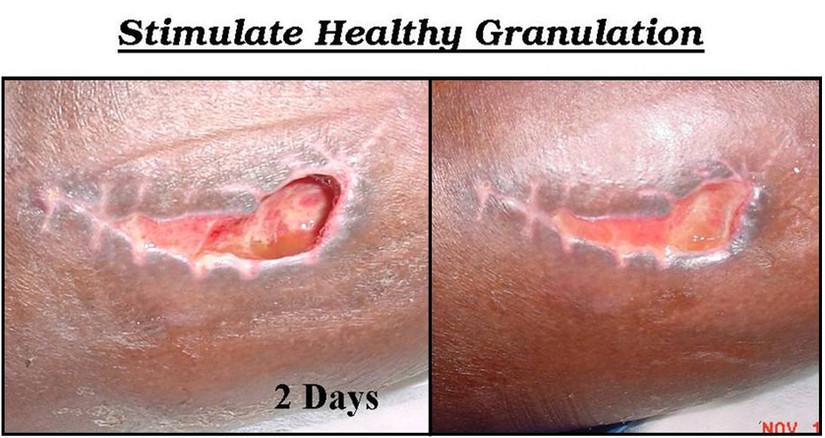 Stimulate Healthy Granulation