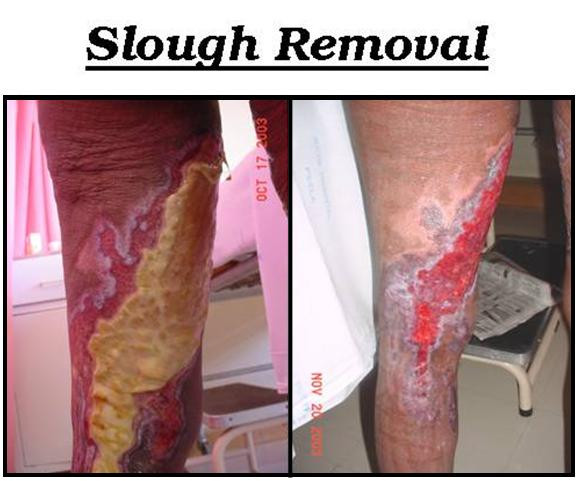 Slough Removal